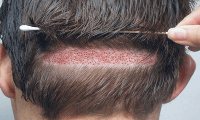 How To Choose The Right Hair Transplant Center In Turkey
